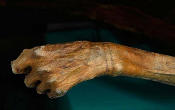 Two tattooed bands can be seen around Ötzi's wrist.