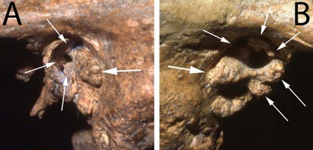 Two views of the ear canal of the Neanderthal fossil Shanidar 1 showing deformities likely to have caused profound deafness. (Image: Courtesy of Erik Trinkaus)