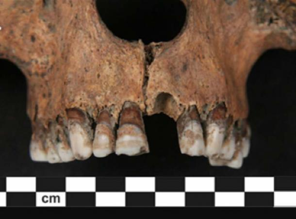Using a new technique, researchers were able to test the protein on tooth enamel, taken from the skeletons, to reveal the 4-6th century AD skeletons were male. (Nature)
