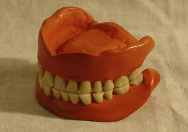 Vulcanite dentures. National Museum of Health and Medicine / Flickr