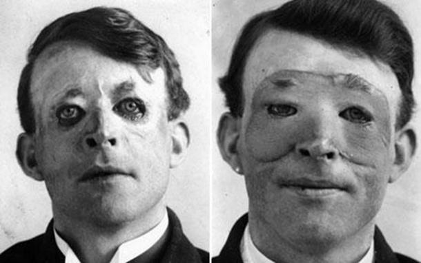 Walter Yeo, the first person to receive plastic surgery, before (left) and after (right) skin flap surgery performed by Sir Harold Delf Gillies in 1917. In the tragic accident he was recorded as having lost both his upper and lower eyelids. The surgery was some of the first to use a skin flap from an unaffected area of the body and paved the way for a sudden rash of improvements in this field. (Daily Telegraph / Public Domain)