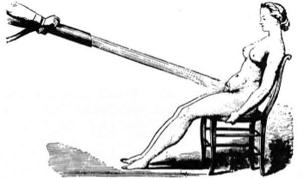 Water massages as a treatment for hysteria 1860. (Laurascudder / Public Domain)