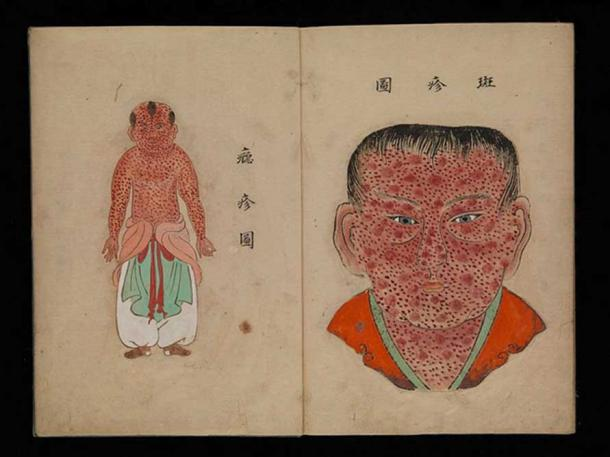 Watercolor illustration from a Japanese work on smallpox entitled Toshin seiyo [The essentials of smallpox].