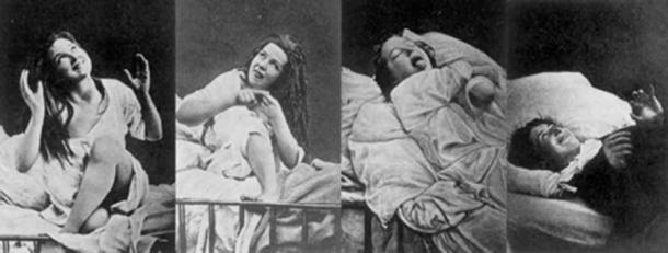 Women under hysteria as depicted in 1880. (Damiens.rf / Public Domain)