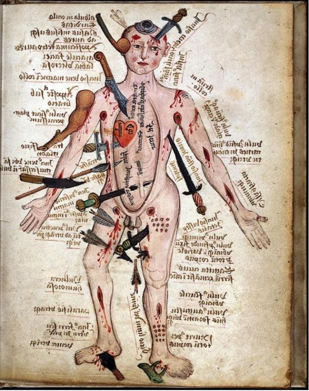 """Wound Man,"" a medieval work attributed to Galen"