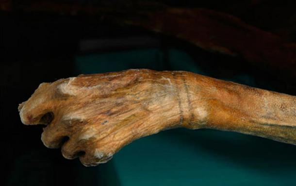 Wrist tattoos on Otzi the Iceman