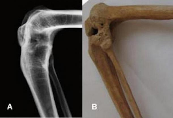 X-ray and photograph of the flexed ankylosed left knee of the prosthesis owner.