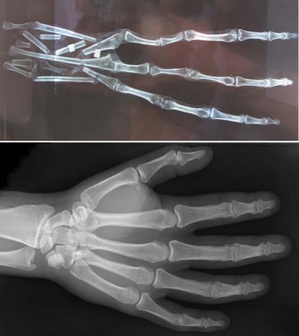 Top: X-ray of the 3-fingered hand, showing 6 bones in each finger. Credit: Brien Foerster / Hidden Inca Tours. Bottom: X-ray of a human hand, showing 3 bones in each finger.