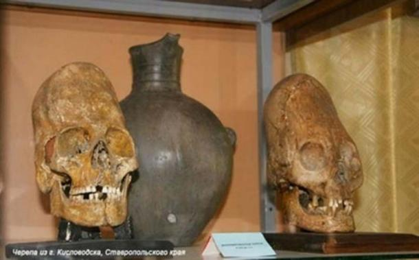 Top: Yakovenkovo infant (archaeology & arts). Bottom: Kislovodsk skulls. (soul-guidance.com)