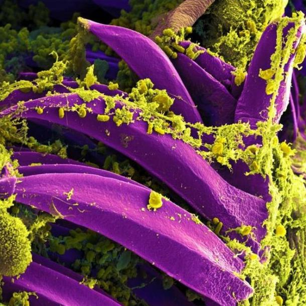 Scanning electron micrograph of Yersinia pestis, which causes bubonic plague, on a flea