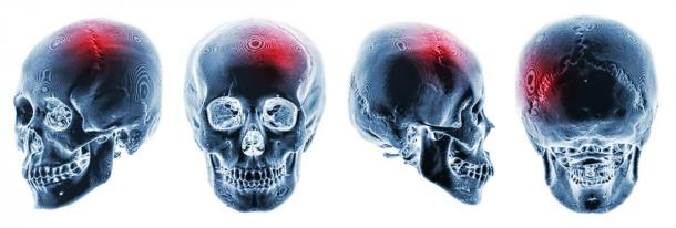 It is believed that a person's special abilities from genetic memory can appear after significant trauma to the brain has occurred. Pictured X-rays of human skulls with apparent head trauma. (stockdevil / Adobe stock)