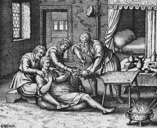 17th century illustration of an amputation scene