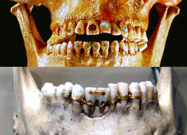 From jewel-capped teeth to golden bridges – 9,000 years of dentistry