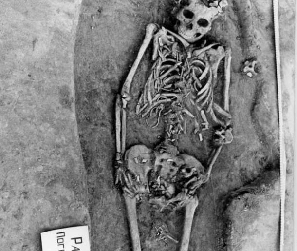 The bones of the Siberian woman's twin fetuses are visible near her pelvis and thighs.