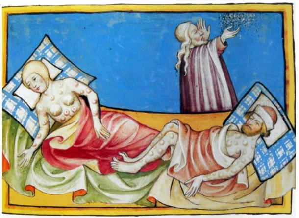 The formation of buboes is one of the main symptoms of bubonic plague. Illustration Toggenburg Bible (1411)
