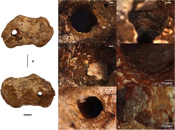 Right calcaneus from 1st c AD Gavello, Italy, showing possible evidence of crucifixion. This archaeological evidence has provided new clues to the death of Jesus. (Emanuela Gualdi-Russo & Ursula Thun Hohenstein / University of Ferrara)