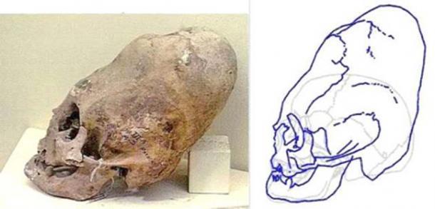 "A ""cone-head"" type of skull. (Lumir G. Janku)"