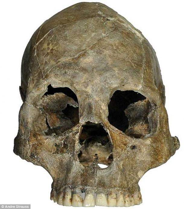 The decapitated skull.