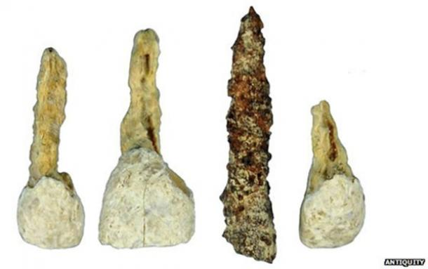 Archaeologists discover 2,300-year-old dental implant in Iron Age burial chamber