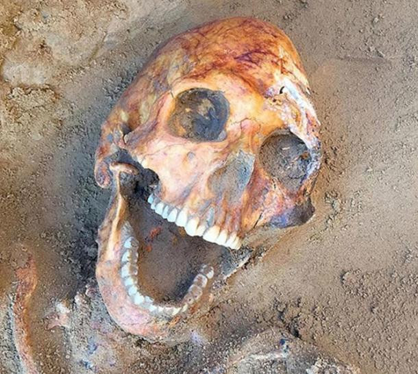 Another burial had an egg-shaped, open mouthed skull