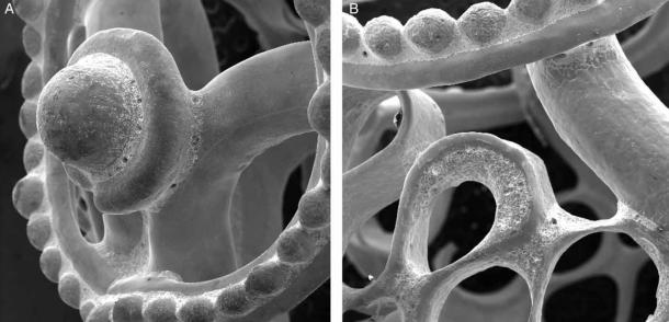 Scanning electron microscope images of the pearl showing the detailed work that went into its construction.