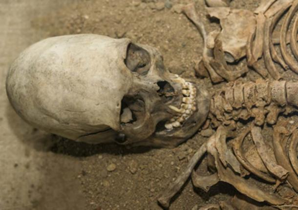 An elongated skull (gerasimov174 / Adobe Stock)
