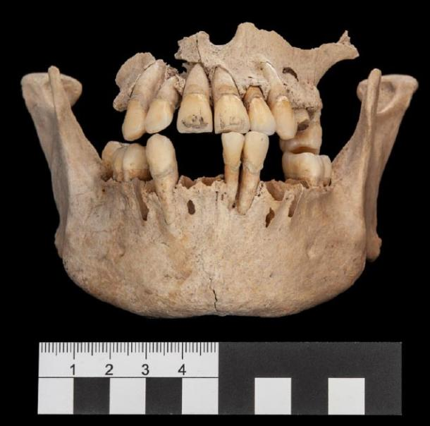 You can see engravings on the front two teeth of this skeleton. (© Nicolaus Seefeld)