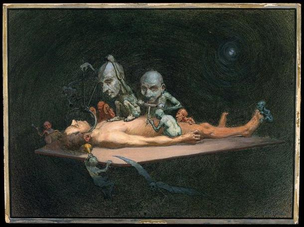 Demons were fearsome creatures in lore: An unconscious naked man lying on a table being attacked by little demons armed with surgical instruments