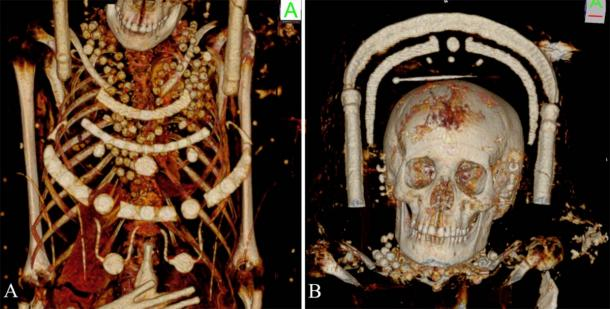 The female mummies were wearing beautiful necklaces. A volume rendered reconstruction showing the details of the young female portrait mummy with beads around the neck, the thoracic region and a hairpin on top of her head. (Zesch S, et al. PLOS One / CC BY 4.0)