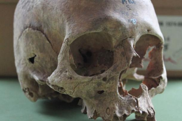 One of the female skulls excavated from the Repton burial site.