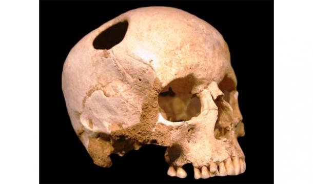 Los antiguos nómadas Pazyryk - Cirugía Craneal