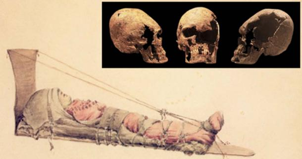 Why Did Parents in the Chinookan tribe Perform Cranial Deformation on their Babies?