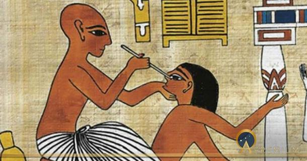 A doctor performing eye surgery. The Ebers Papyrus discusses medical techniques and remedies. Source: Articles sur l'Egypte et son historie