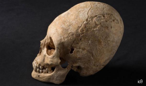 Elongated Skull - France