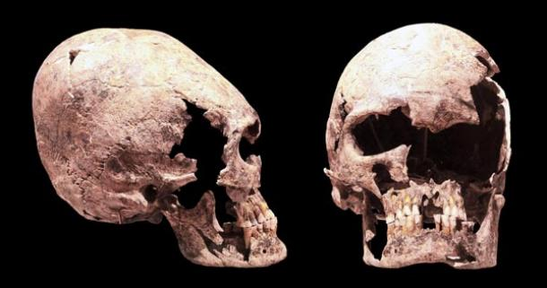 Interactive Map Of Europe >> The World-wide Mysterious Phenomena Of Elongated Skulls | Ancient Origins