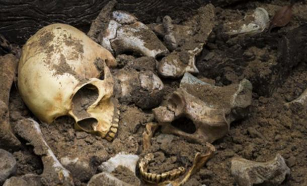 Experts have studied the skeletal remains of five bodies excavated in Ireland and tested the remains for strains of leprosy. Source: Suthiporn / Adobe Stock.