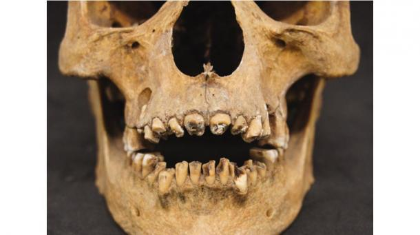First Physical Evidence found of Ancient Egyptian Opening of the Mouth Procedure