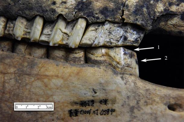 The horse teeth analyzed showed signs of abrasion, consistant with traumatic contact between a bit and the horses teeth. (Yue Li / Northwest University, Shaanxi)
