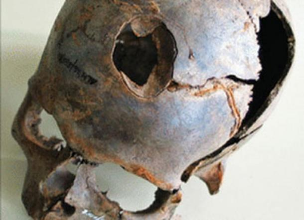 One of the finds from the site includes this human skull with a large fracture.
