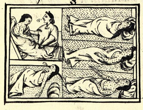 An illustrated panel appearing on fol.54 of Book XII of the 'Florentine Codex', the 16th-century compendium of materials and information on Aztec and Nahua history collected by Fray Bernardino de Sahagún. The drawing shows Nahuas infected with smallpox disease. (Public Domain)
