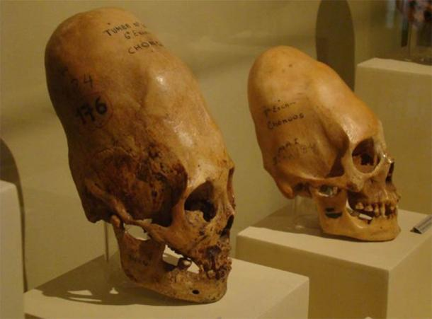 Paracas skulls, found on the south coast of Peru. (CC BY-SA 4.0)
