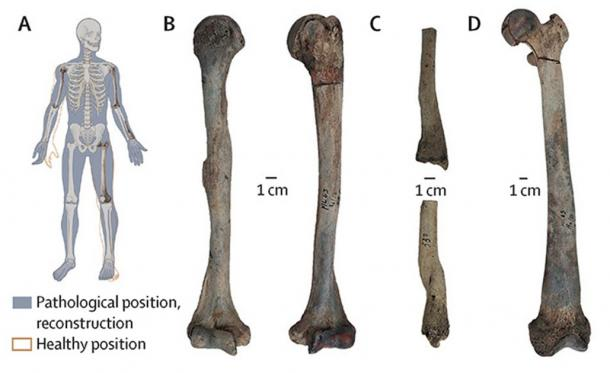 Paleontologists analyzing the remains of a Neolithic man unearthed in Maliq, Albania, have discovered that he suffered from a condition known as osteopetrosis, also known as stone bone disease. (Gresky et al. / The Lancet Diabetes and Endocrinology)