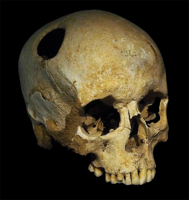 The perimeter of the trephination hole in this Neolithic skull is rounded off by ingrowth of new bony tissue, indicating that the patient survived the operation. This skull was discovered in Corseaux, Switzerland. (Rama / CC BY-SA 3.0 FR)