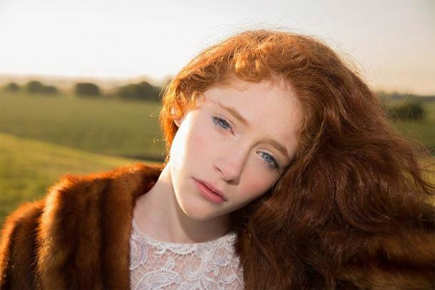 Ireland has the highest concentration of red-haired genes in the world. (Pixabay License)