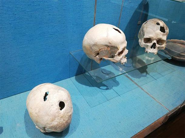 Bronze Age skulls with evidence of trephination found at Comps-sur-Artuby, France, in 1983. On show at the Archaeological Museum of Saint-Raphaël, France. (Wisi eu / CC BY-SA 4.0)