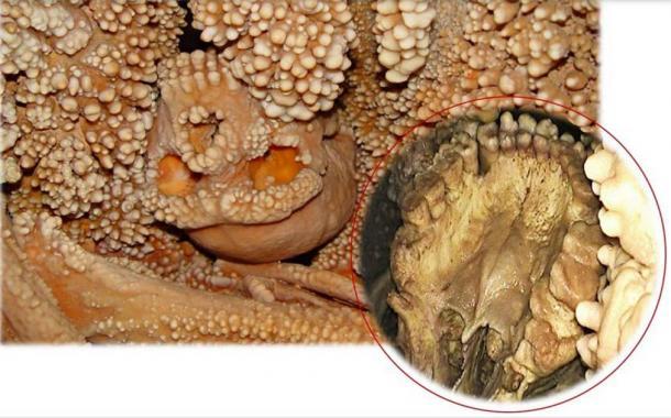 A closeup of Altamura Man's mouth and teeth on the lower right. (Sapienza Universita de Roma)