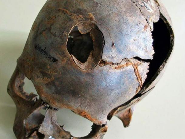 One of the skulls found at Europe's oldest massacre site in Germany. Note how the skull has been smashed in, likely with a deadly wooden club. (State Office for Culture and Preservation Meckleburg-Vorpommern)