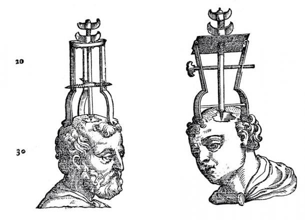 Two heads with trephining instruments in position. (Wellcome Images / CC BY 4.0)