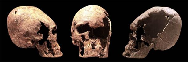 Elongated skull of a young woman, probably an Alan. On display at Yverdon History museum. (CC BY-SA 2.0)