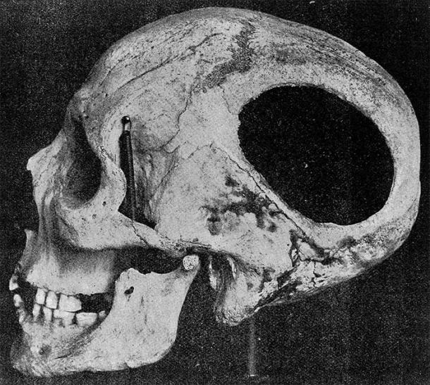 Skull with evidence of trephination from the cave of Nogent-les-vierges, France, Neolithic period. (Wellcome Images / CC BY 4.0)